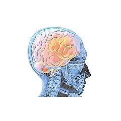 Trastornos neurológicos