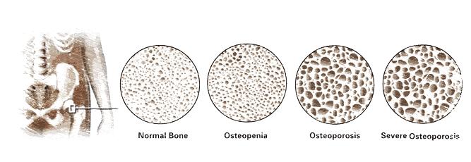 osteoporosis,osteoblastos,osteoclastos,calcio,vitamina D,estrógeno,menopausia,herbolario online,cosmética natural,tratamientos naturales,productos naturales