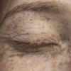 ¿Qué son los radicales libres y qué daños pueden producir en la piel?